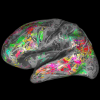 Color-coded brain map