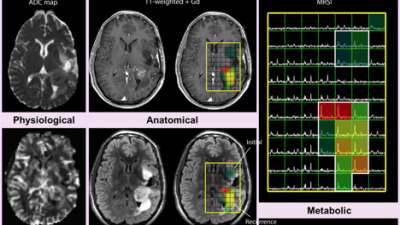 brain imaging graphs