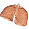 Ushizima-lung-image thumbnail square